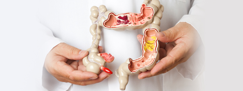 Mesa AZ | Gilbert | Scottsdale | Colorectal Surgery